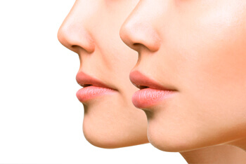 Cropped image of two faces for treatment via fillers
