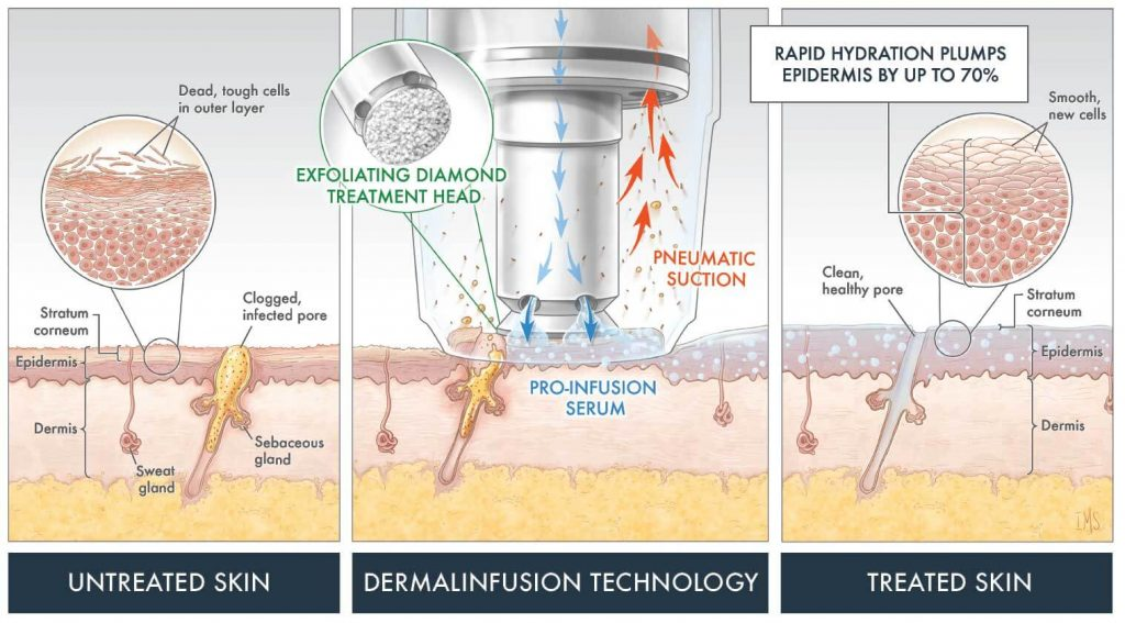 Dermal Infusion graphic illustration