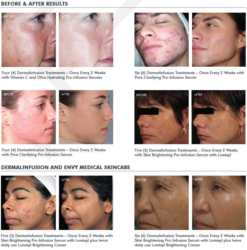 Silkpeel Dermal Infusion before after