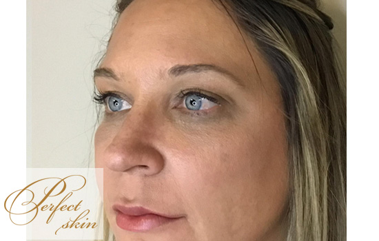 After Fillers Treatment
