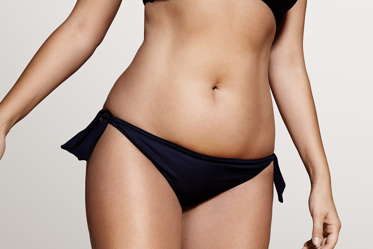 Liposuction Fat Removal at Perfect Skin Dermatology in Colorado Springs CO Area