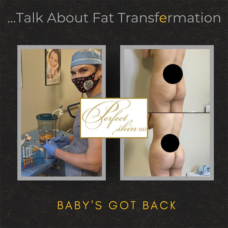 Talk About Fat Transformation
